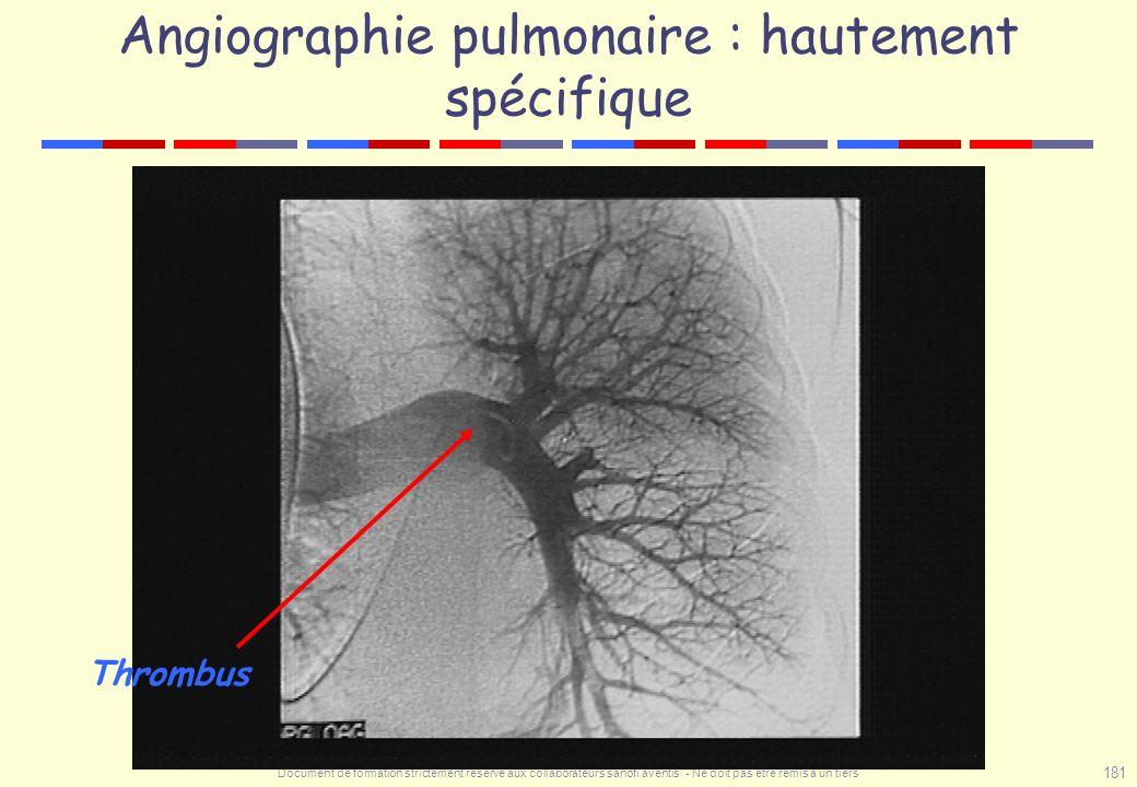 Angiographie pulmonaire : hautement spécifique