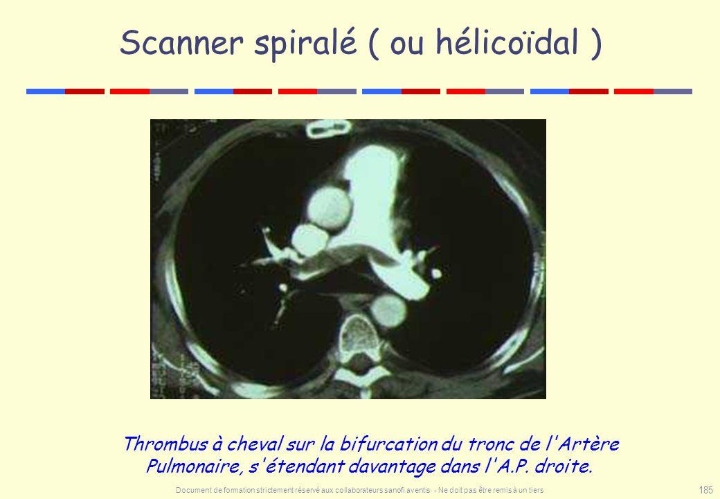Scanner spiralé ( ou hélicoïdal )