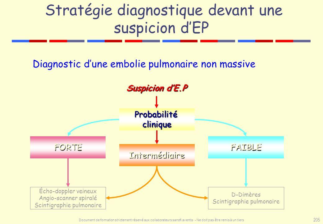 Stratégie diagnostique devant une suspicion d'EP