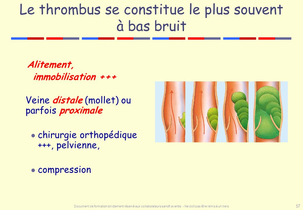 Le thrombus se constitue le plus souvent à bas bruit
