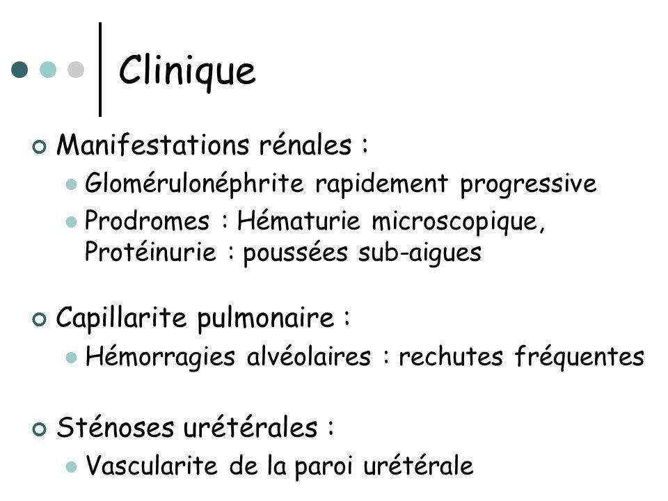 Clinique Manifestations rénales : Capillarite pulmonaire :
