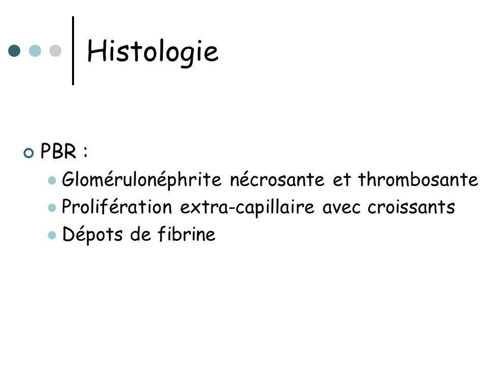 Histologie PBR : Glomérulonéphrite nécrosante et thrombosante