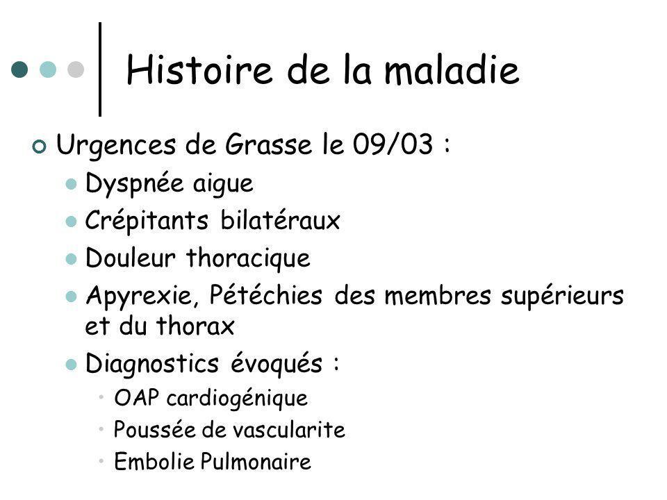 Histoire de la maladie Urgences de Grasse le 09/03 : Dyspnée aigue