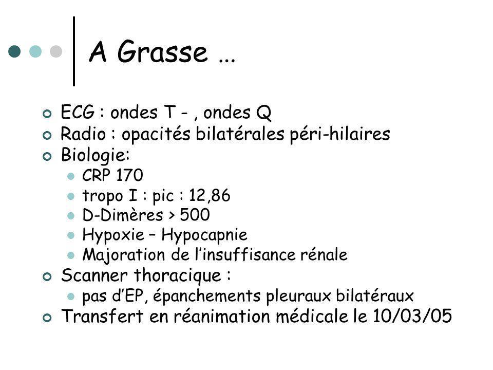 A Grasse … ECG : ondes T - , ondes Q
