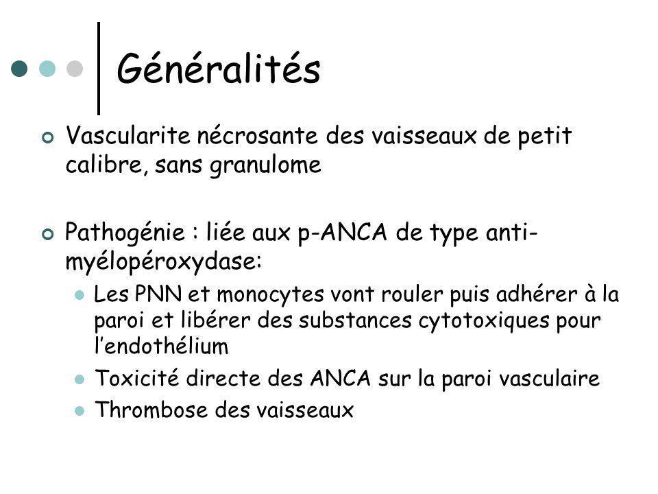Généralités Vascularite nécrosante des vaisseaux de petit calibre, sans granulome. Pathogénie : liée aux p-ANCA de type anti-myélopéroxydase: