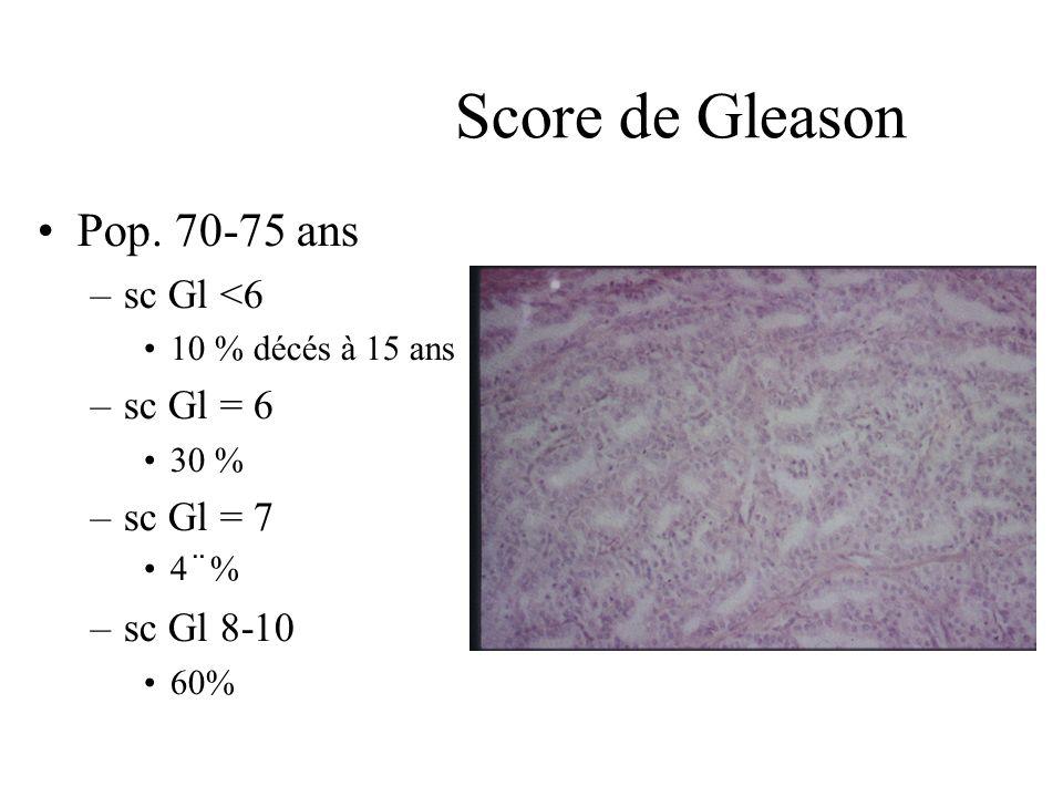 Score de Gleason Pop. 70-75 ans sc Gl <6 sc Gl = 6 sc Gl = 7