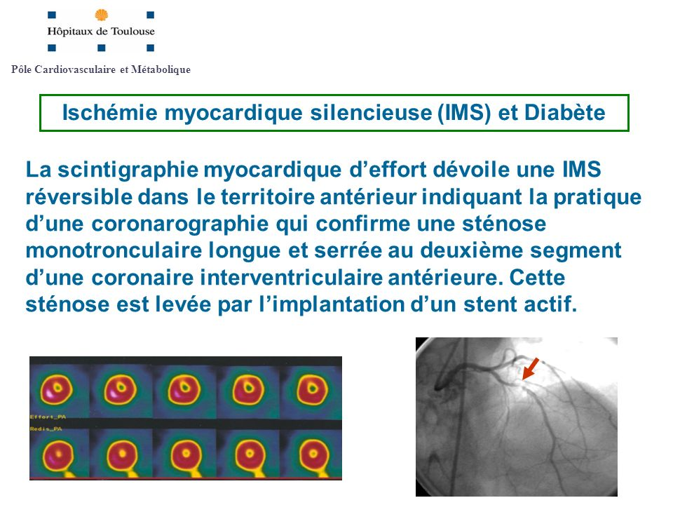 Pôle Cardiovasculaire et Métabolique