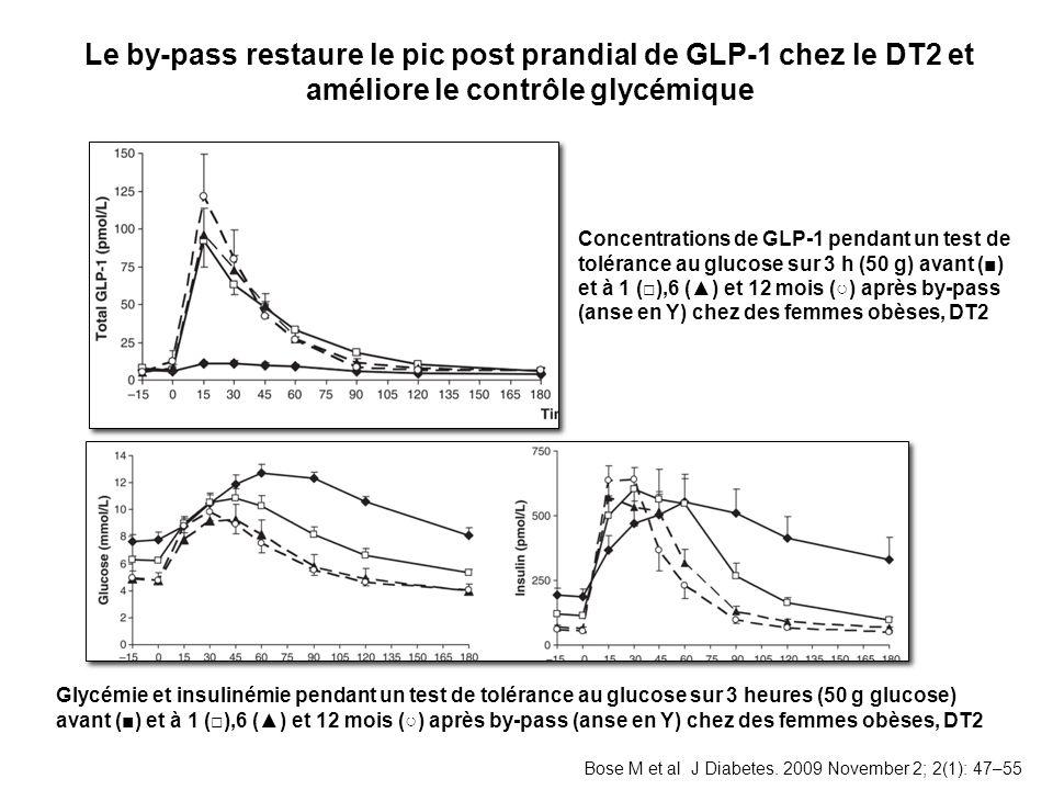 Le by-pass restaure le pic post prandial de GLP-1 chez le DT2 et améliore le contrôle glycémique