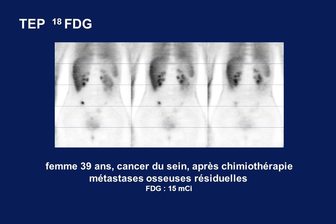 TEP 18 FDG femme 39 ans, cancer du sein, après chimiothérapie