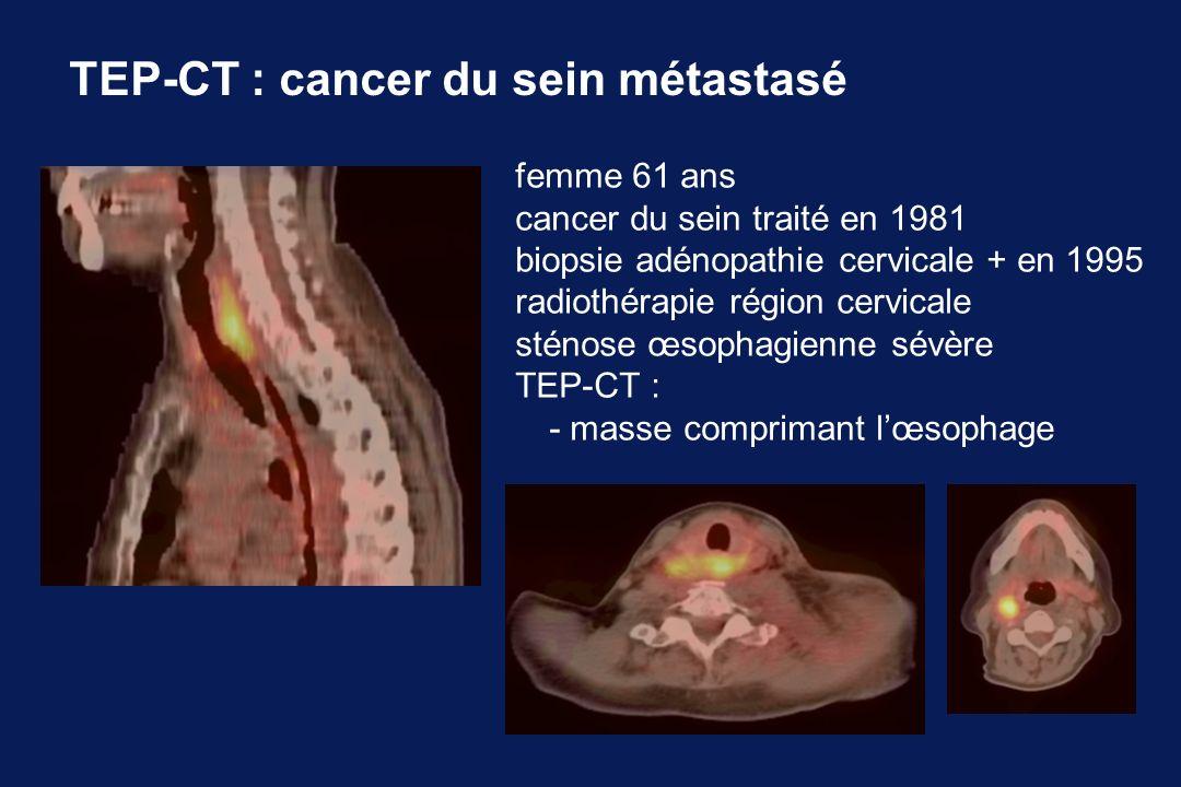 TEP-CT : cancer du sein métastasé