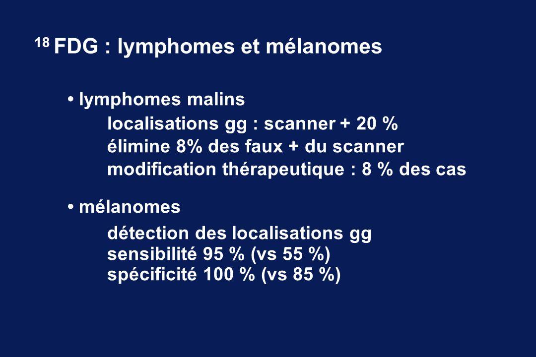 18 FDG : lymphomes et mélanomes