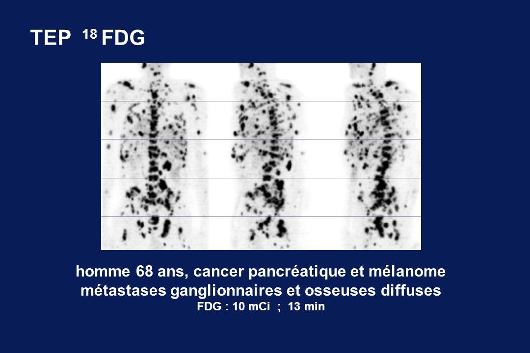 TEP 18 FDG homme 68 ans, cancer pancréatique et mélanome