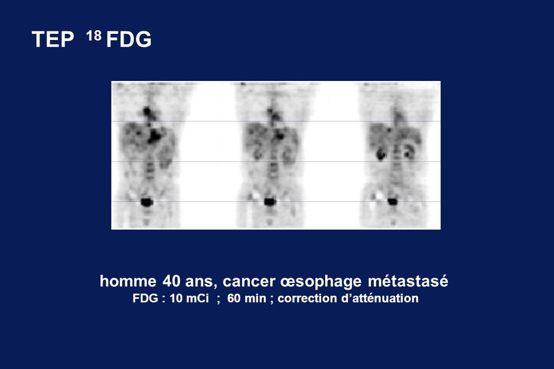 TEP 18 FDG homme 40 ans, cancer œsophage métastasé