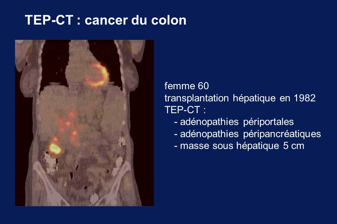 TEP-CT : cancer du colon