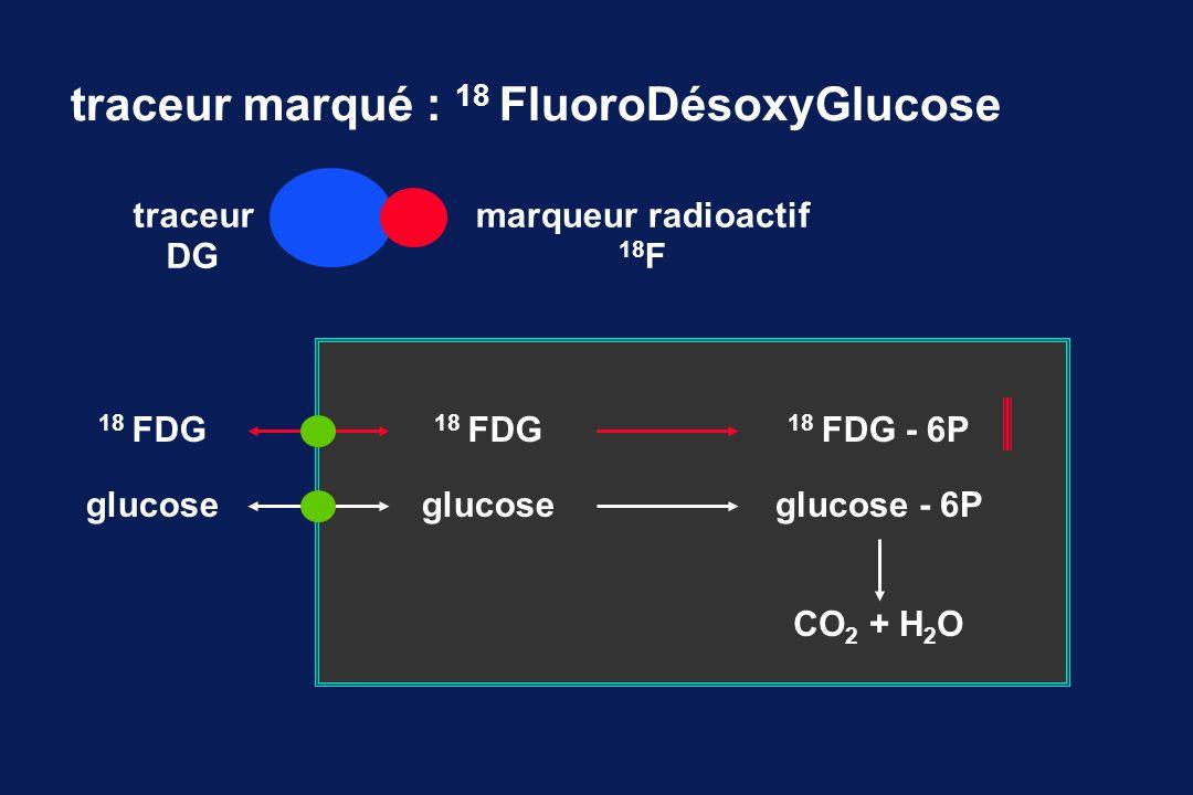 traceur marqué : 18 FluoroDésoxyGlucose