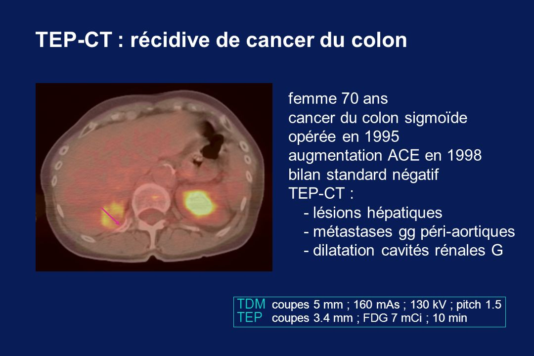 TEP-CT : récidive de cancer du colon
