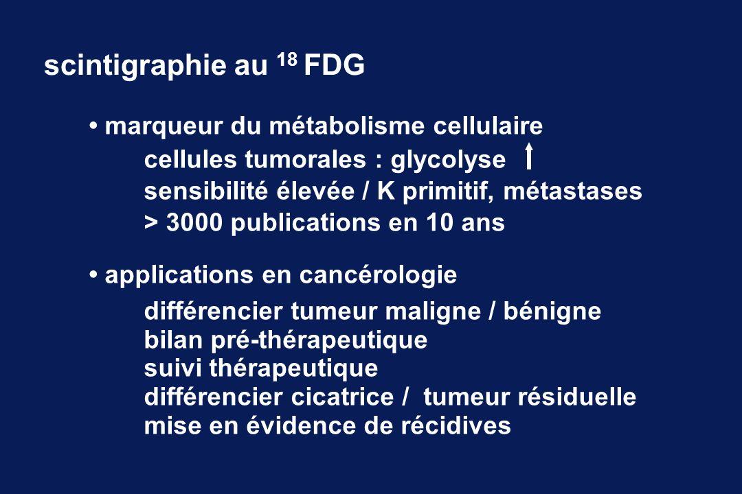 scintigraphie au 18 FDG • marqueur du métabolisme cellulaire