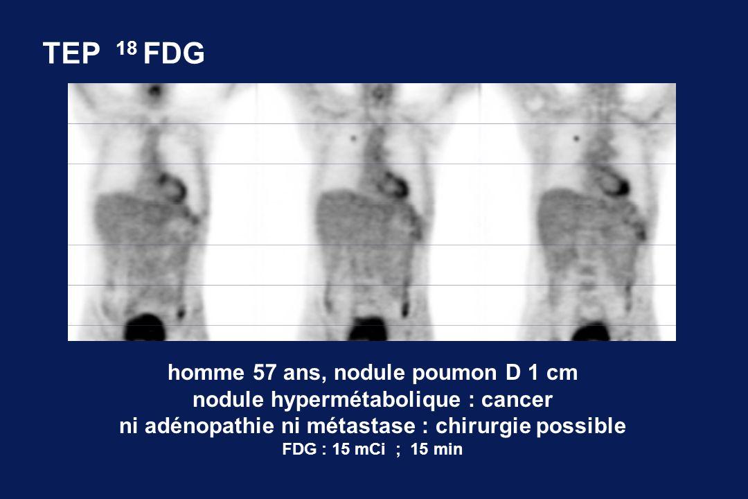 TEP 18 FDG homme 57 ans, nodule poumon D 1 cm