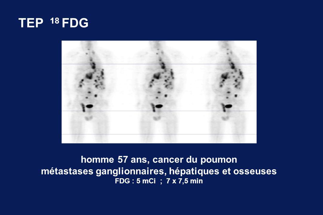 TEP 18 FDG homme 57 ans, cancer du poumon