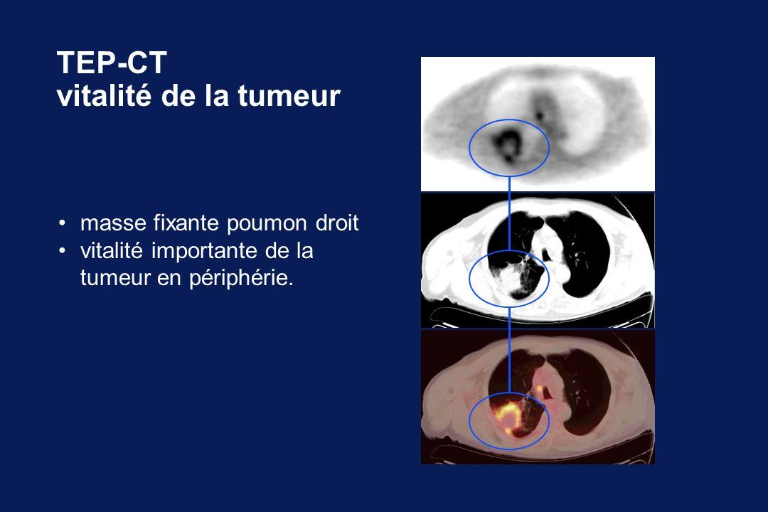 TEP-CT vitalité de la tumeur • masse fixante poumon droit