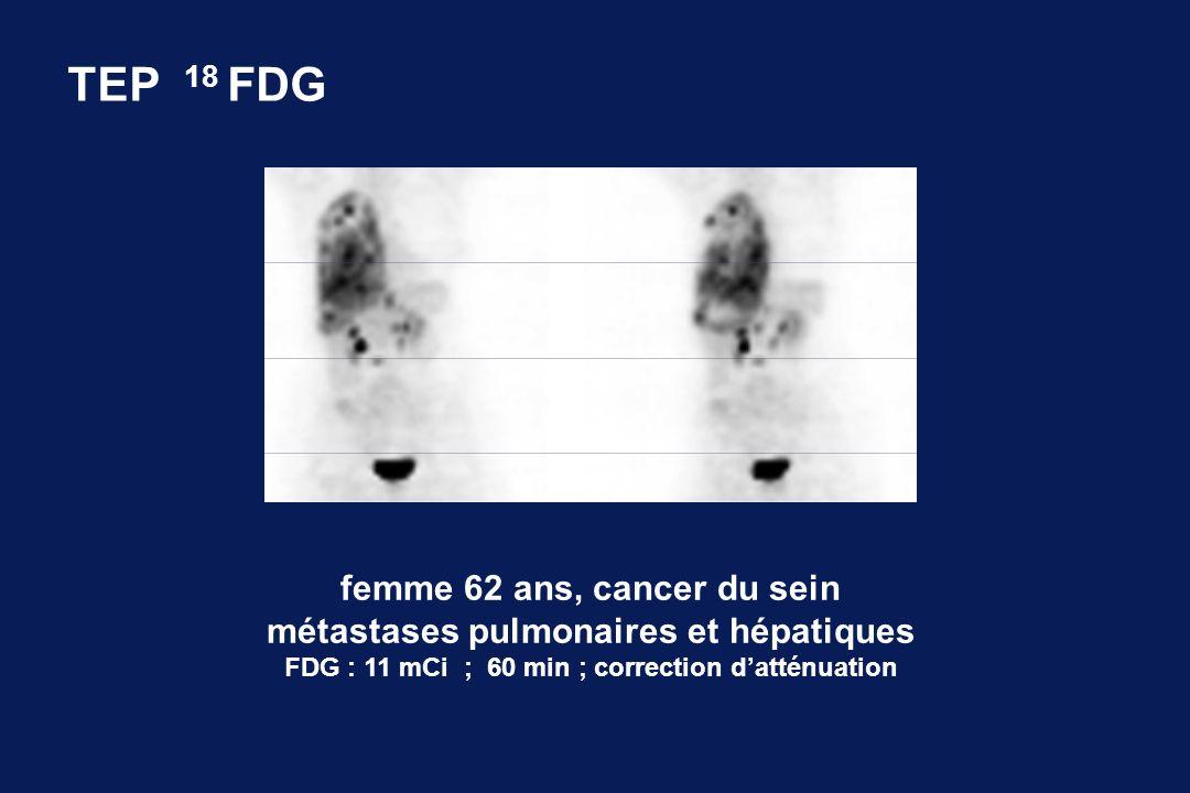 TEP 18 FDG femme 62 ans, cancer du sein