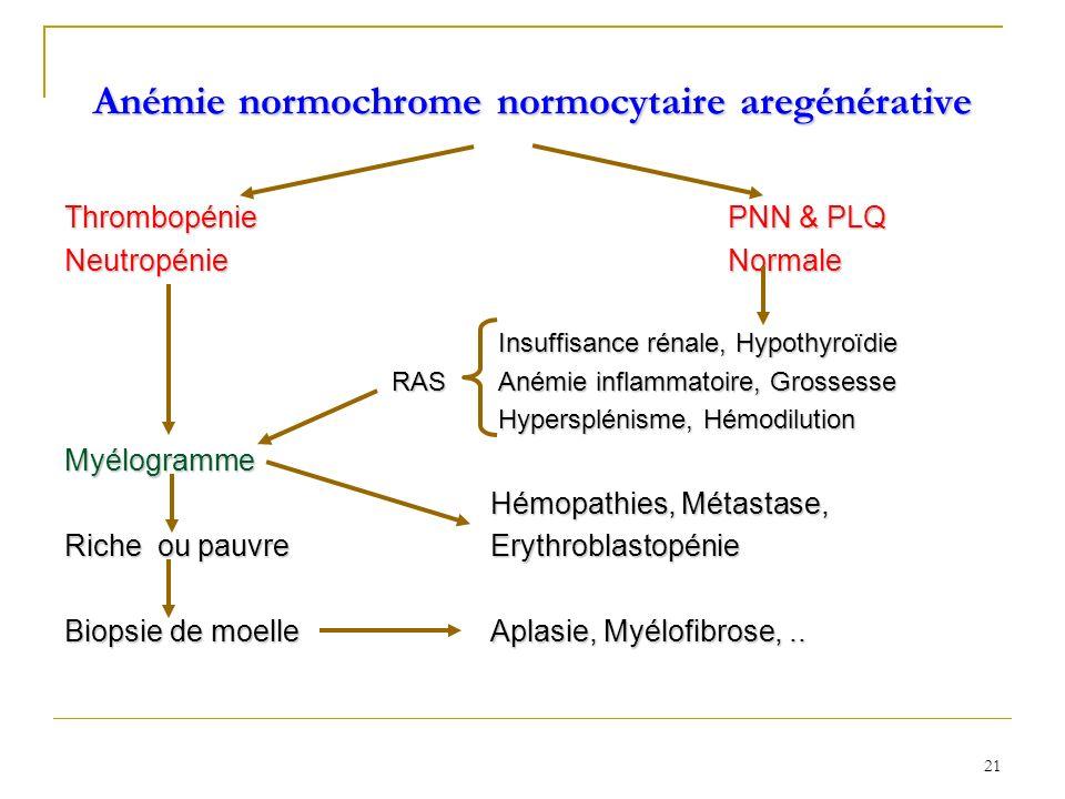 Anémie normochrome normocytaire aregénérative