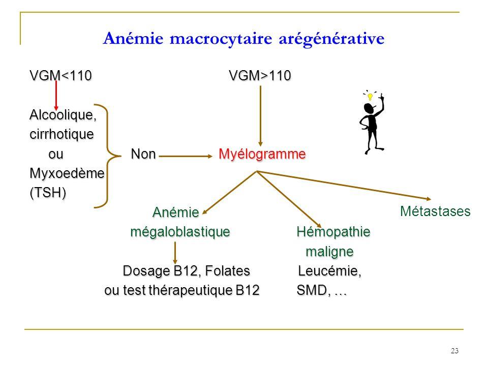 Anémie macrocytaire arégénérative