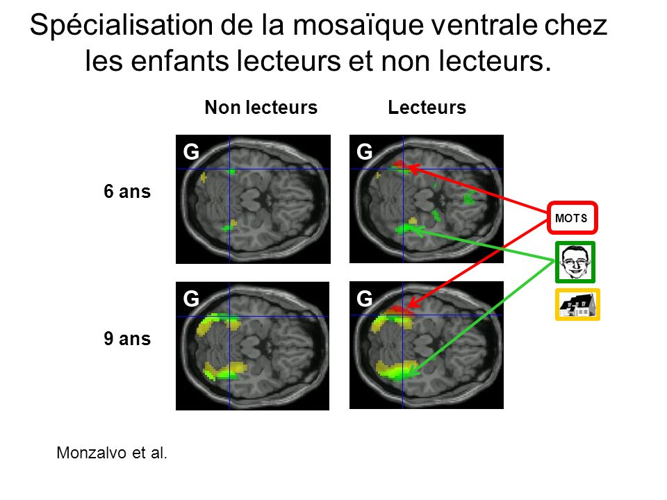 Spécialisation de la mosaïque ventrale chez les enfants lecteurs et non lecteurs.