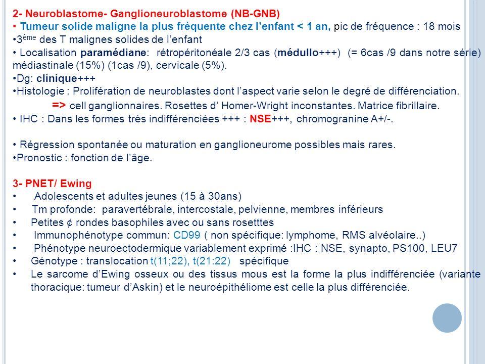2- Neuroblastome- Ganglioneuroblastome (NB-GNB)