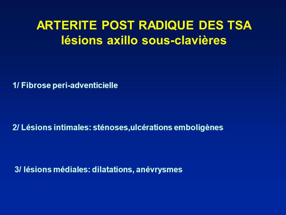 ARTERITE POST RADIQUE DES TSA lésions axillo sous-clavières