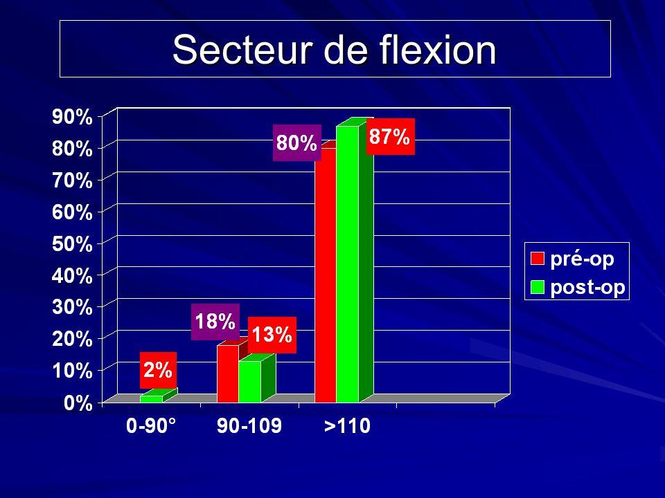 Secteur de flexion Discrète amélioration de la flexion