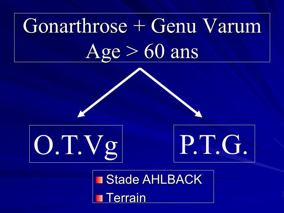 Gonarthrose + Genu Varum Age > 60 ans