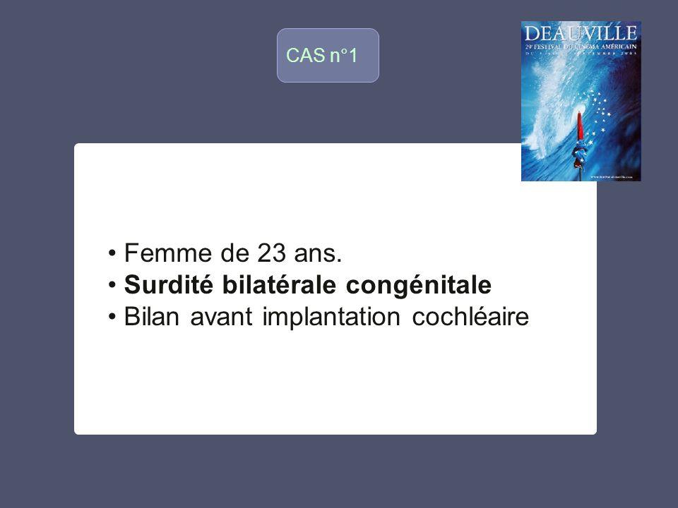 Surdité bilatérale congénitale Bilan avant implantation cochléaire