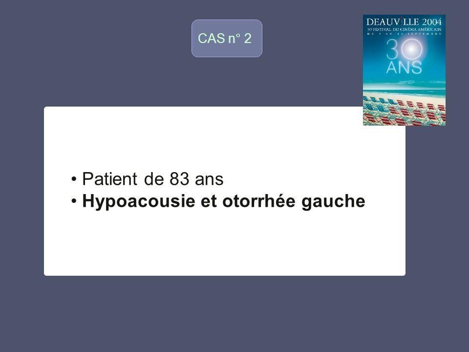 Hypoacousie et otorrhée gauche