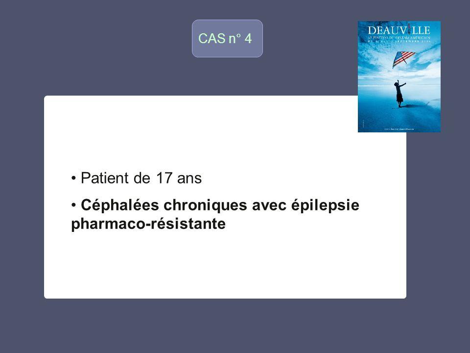 Céphalées chroniques avec épilepsie pharmaco-résistante