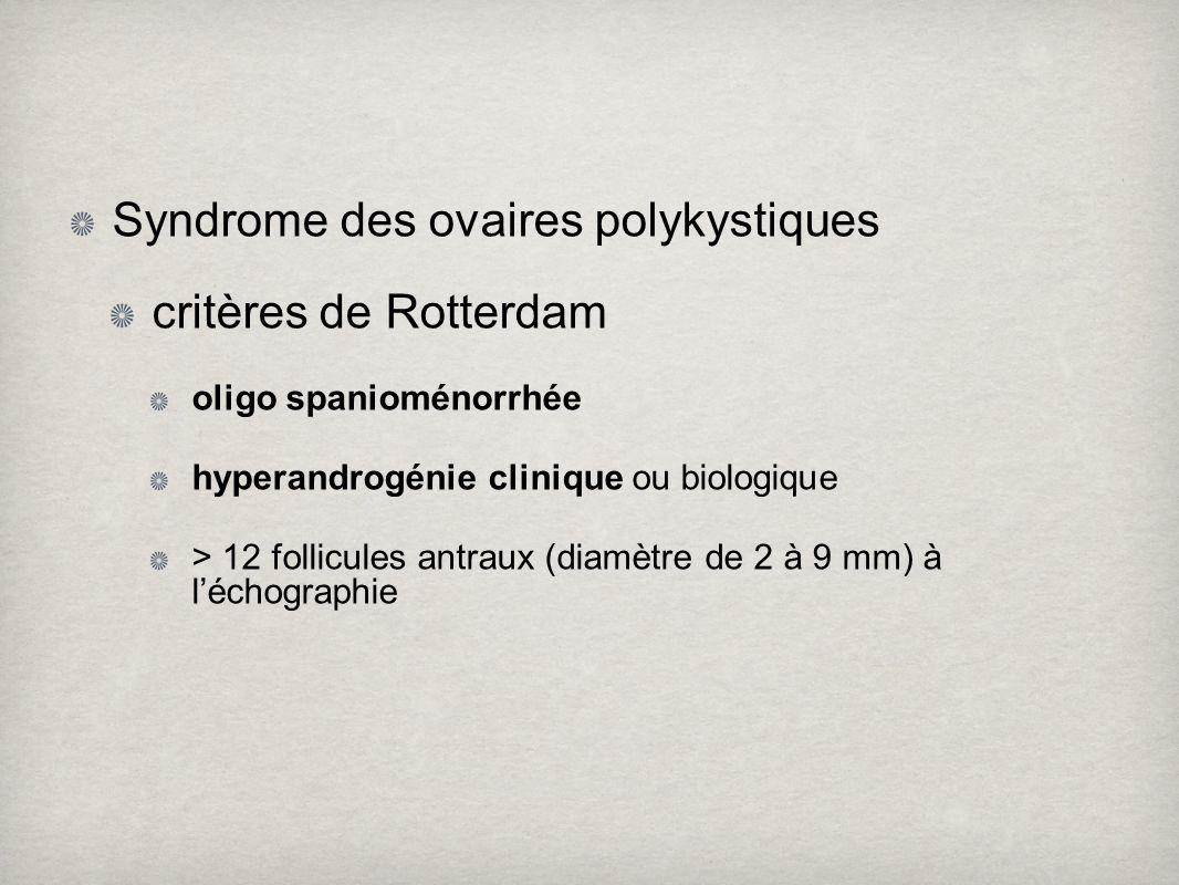 Syndrome des ovaires polykystiques critères de Rotterdam