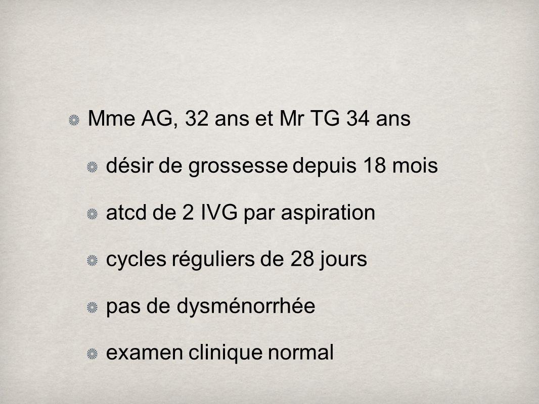 Mme AG, 32 ans et Mr TG 34 ans désir de grossesse depuis 18 mois. atcd de 2 IVG par aspiration. cycles réguliers de 28 jours.