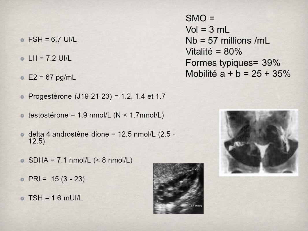 SMO = Vol = 3 mL Nb = 57 millions /mL Vitalité = 80%