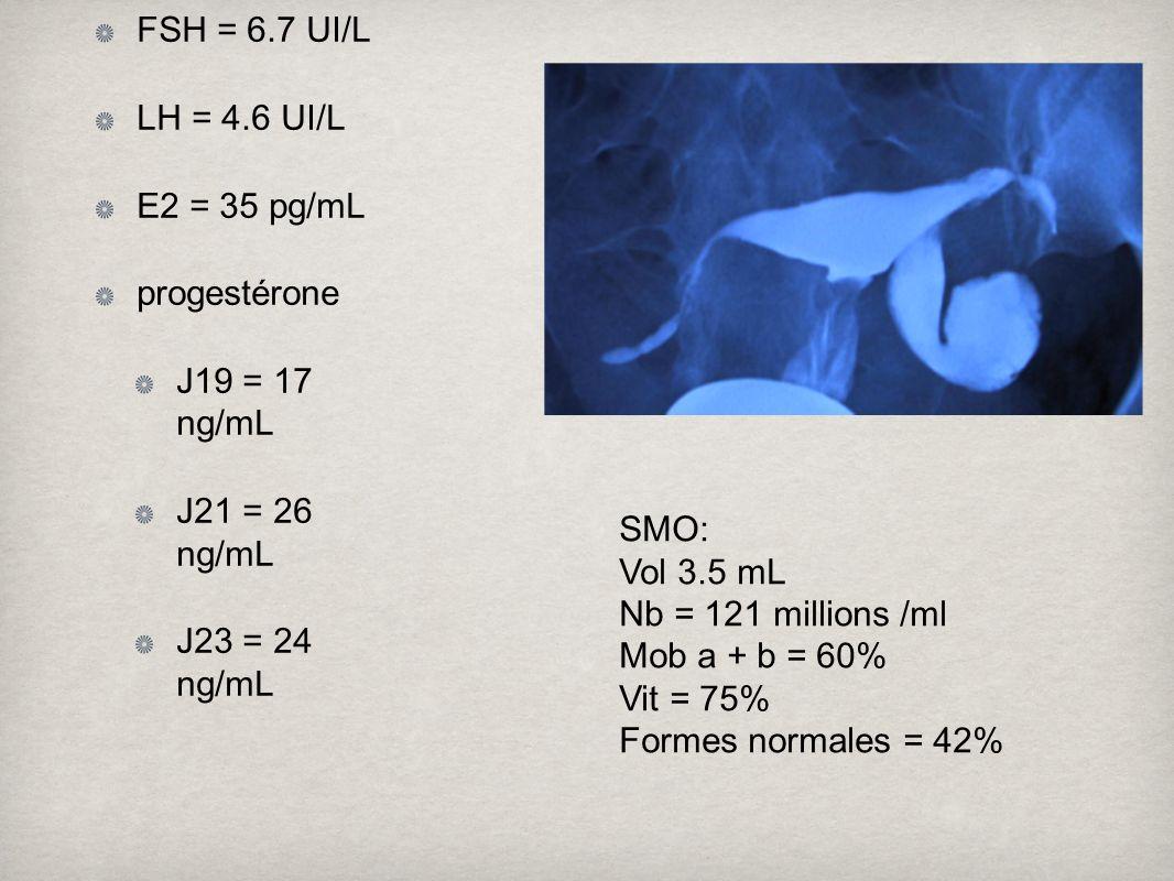 FSH = 6.7 UI/L LH = 4.6 UI/L. E2 = 35 pg/mL. progestérone. J19 = 17 ng/mL. J21 = 26 ng/mL. J23 = 24 ng/mL.