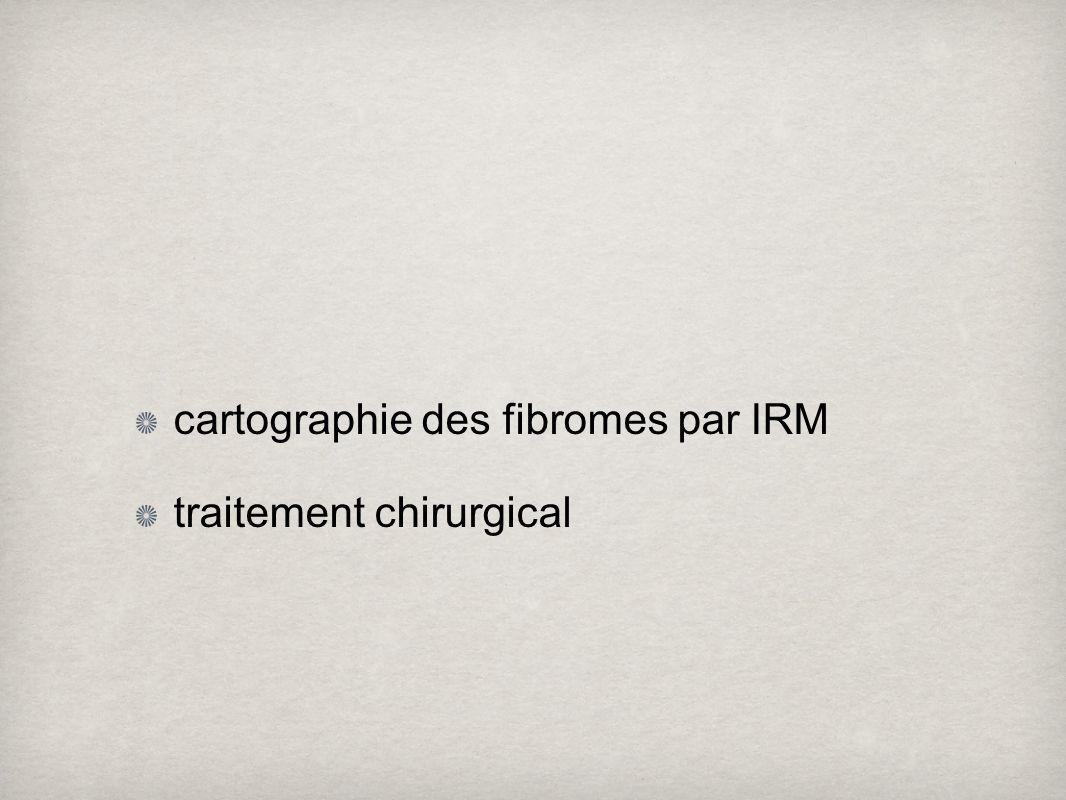 cartographie des fibromes par IRM