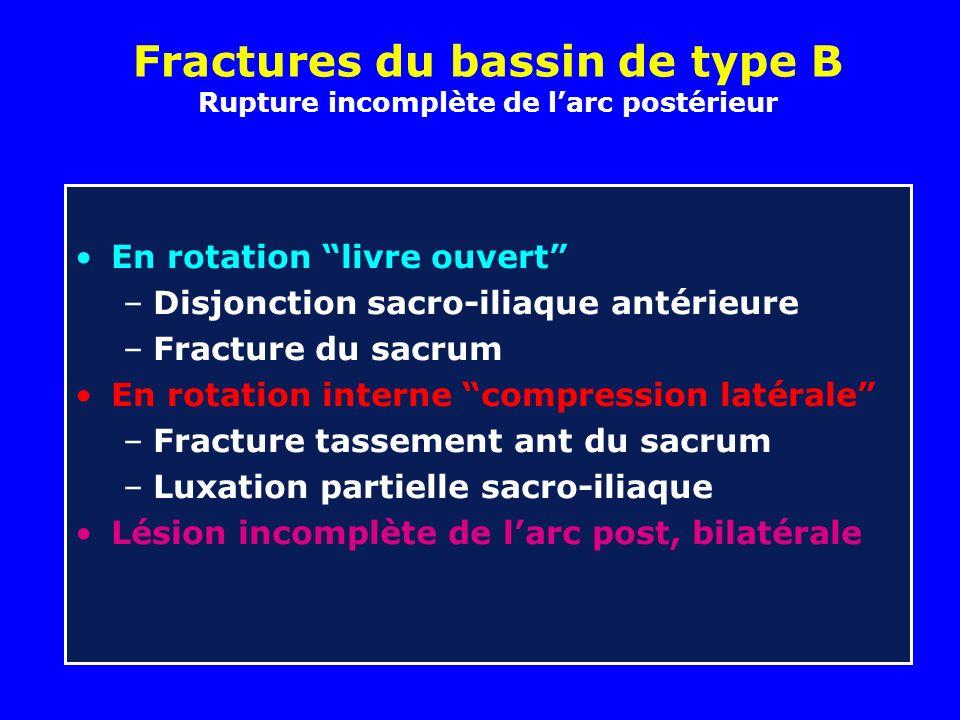 Fractures du bassin de type B Rupture incomplète de l'arc postérieur