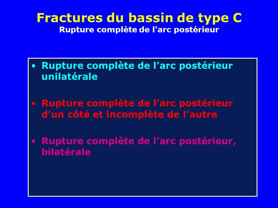 Fractures du bassin de type C Rupture complète de l'arc postérieur