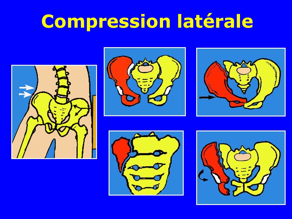 Compression latérale