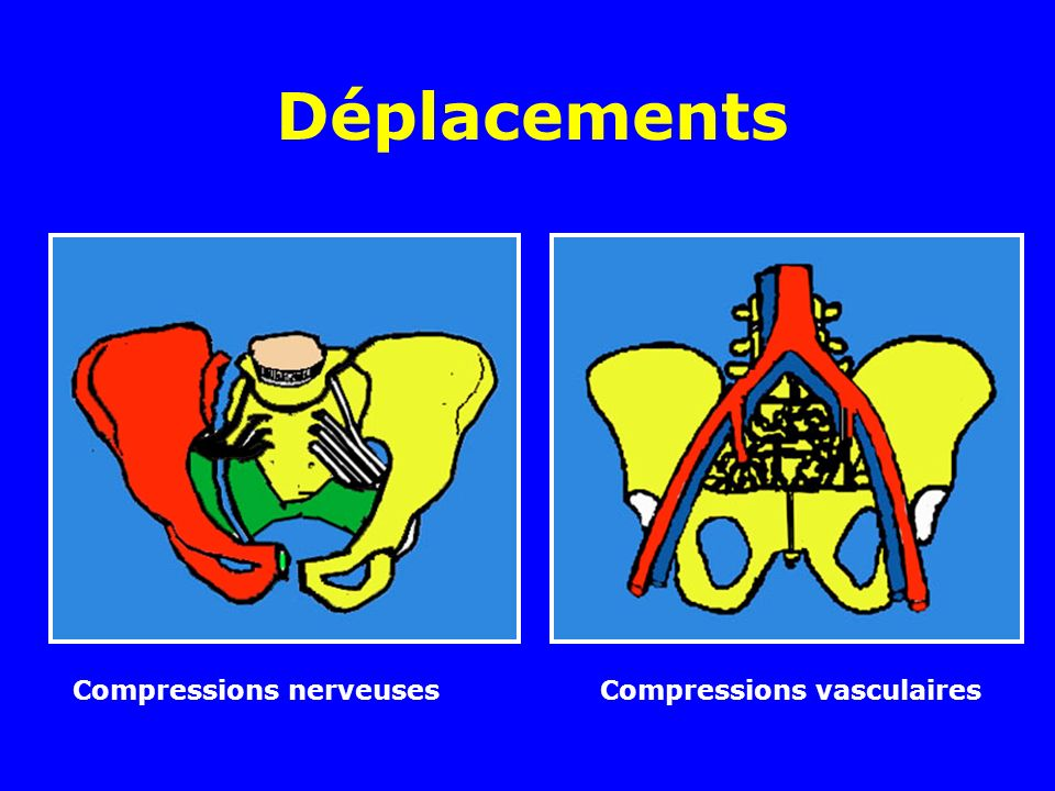 Déplacements Compressions nerveuses Compressions vasculaires