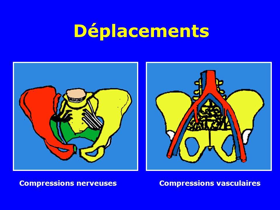 Déplacements Compressions nerveuses Compressions vasculaires