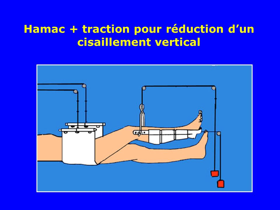 Hamac + traction pour réduction d'un cisaillement vertical