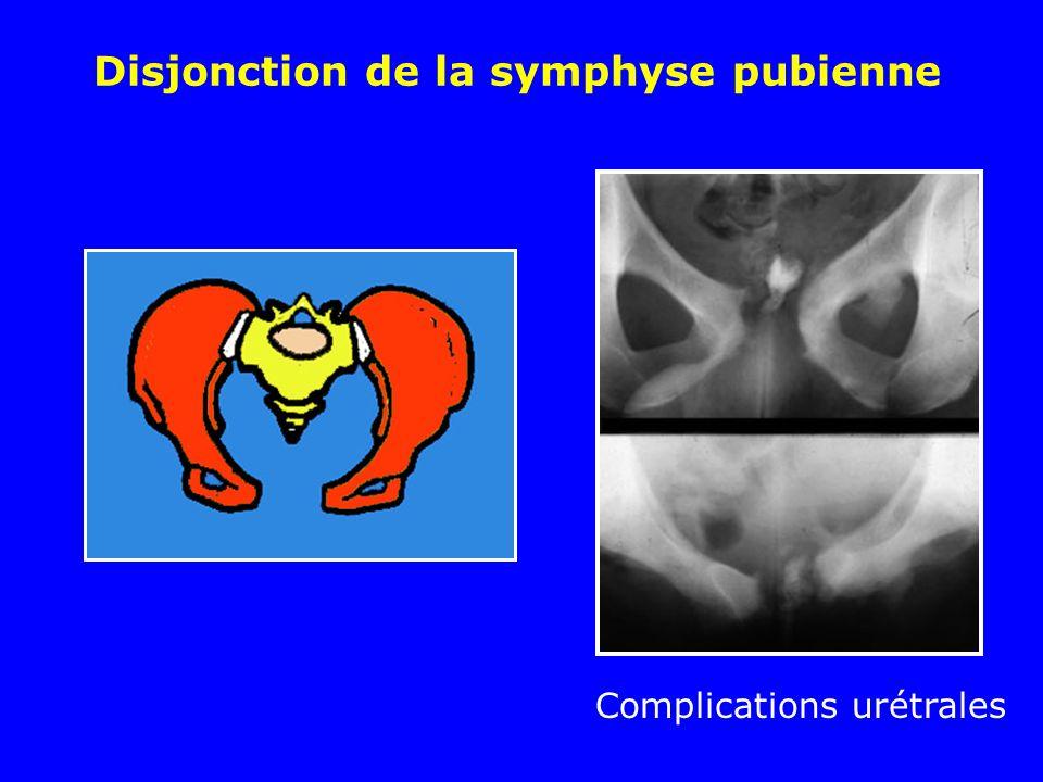 Disjonction de la symphyse pubienne