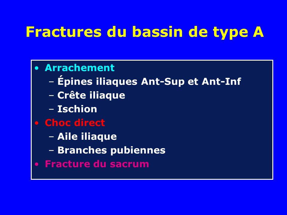 Fractures du bassin de type A