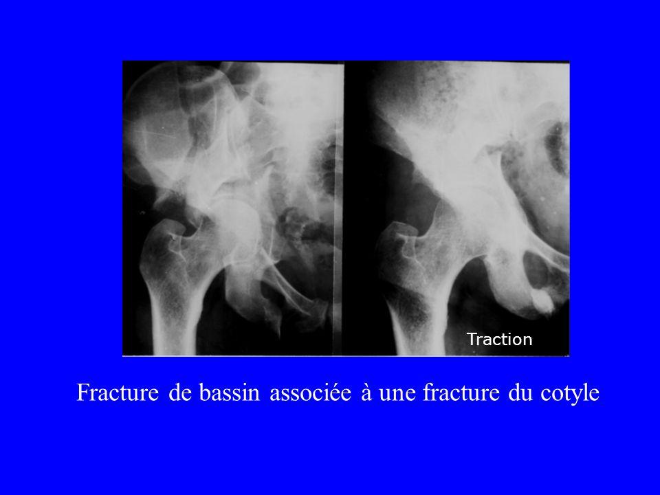 Fracture de bassin associée à une fracture du cotyle