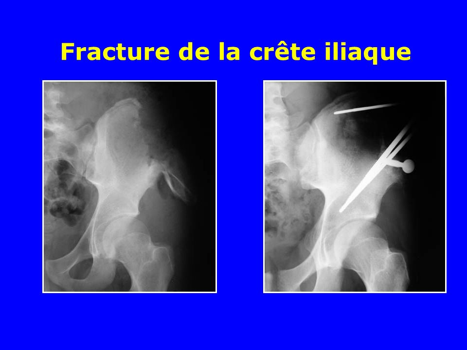 Fracture de la crête iliaque